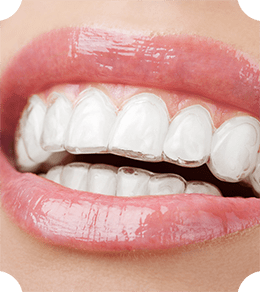 A beautiful smile thanks to Invisalign