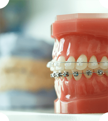 A mouth model with braces attached to represent Phase 1 and Phase 2 orthodontics