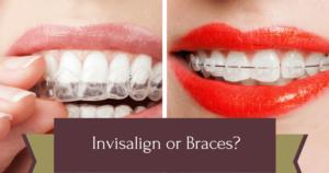 Comparison between Invisalign or braces