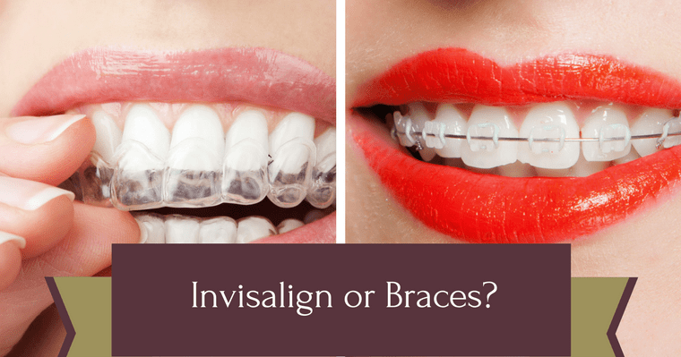 Comparison between Invisalign or braces