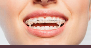 Teenager wearing rubber bands for braces in Chatham, NJ