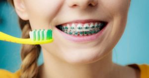 A close-up of a girl's smile with braces and a toothbrush