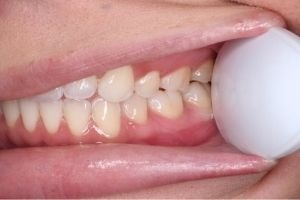 An example of a left side of teeth photo