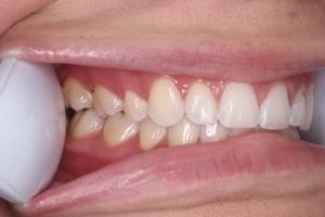 An example of a right side of teeth photo