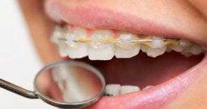 A dental mirror examining a patient's mouth for white spots on teeth with braces